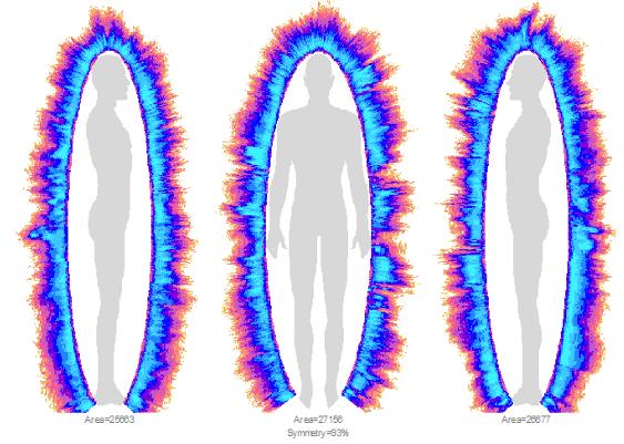 Analyse des perturbations Bio-energetiques